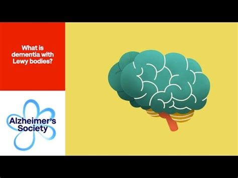 What is dementia with Lewy bodies? - Alzheimer's Society